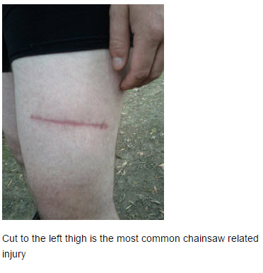 chainsaw safety injury